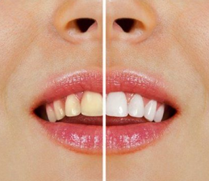 DIY-Teeth-Whitening